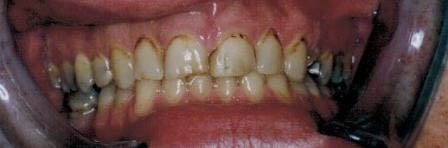 Dark stained and worn down teeth