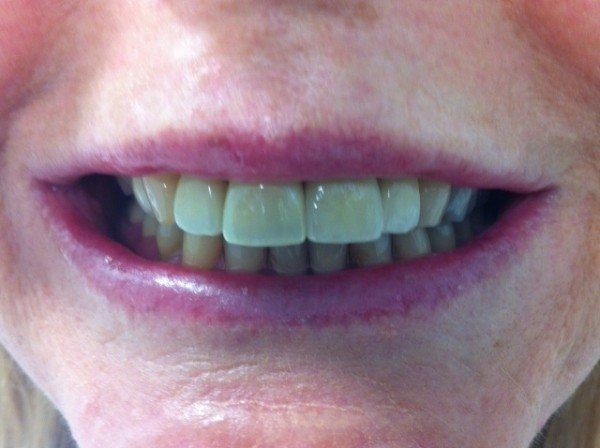 Implant and crown now placed photo showing a perfect match.