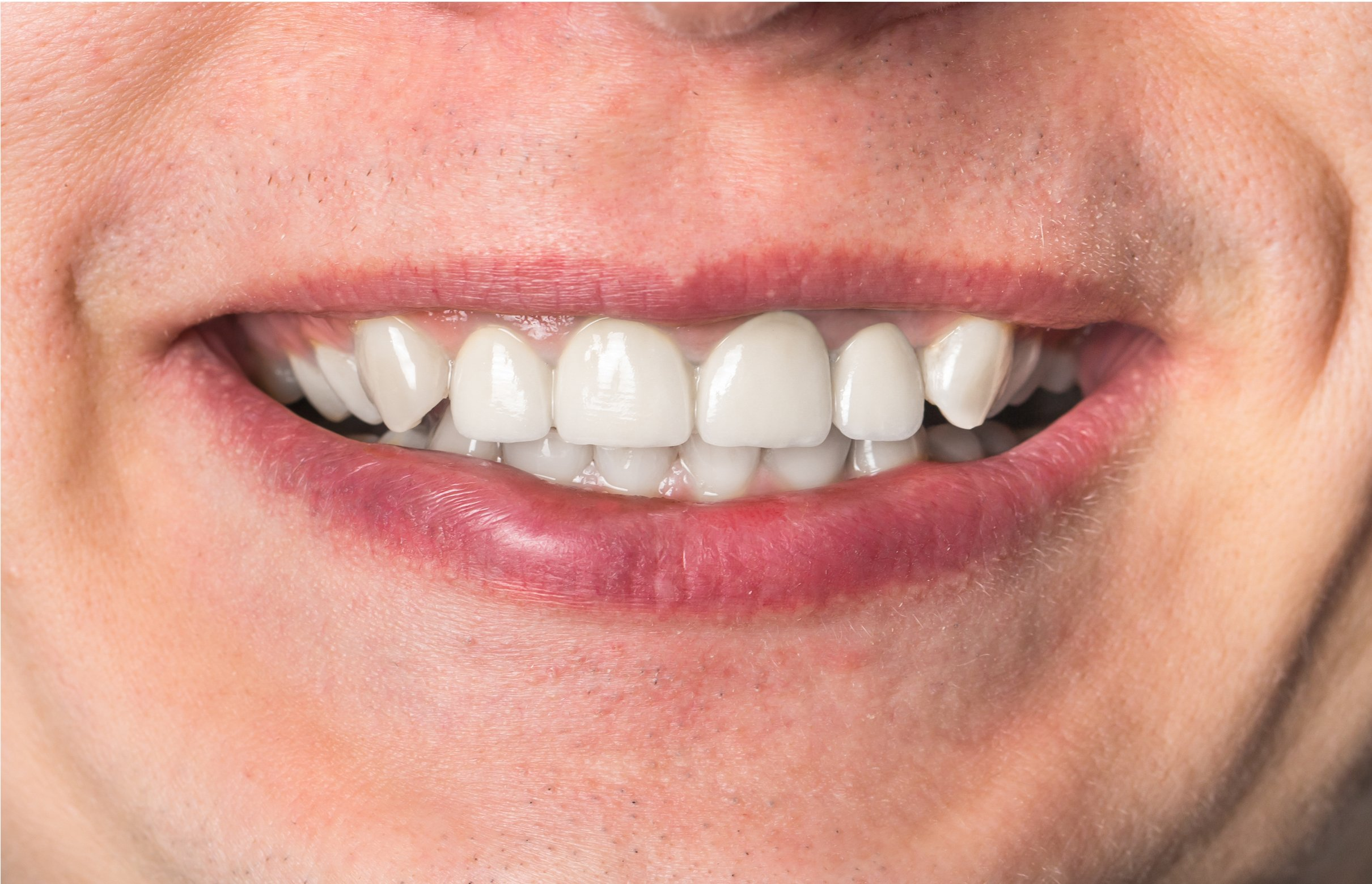 Single tooth Implants - After