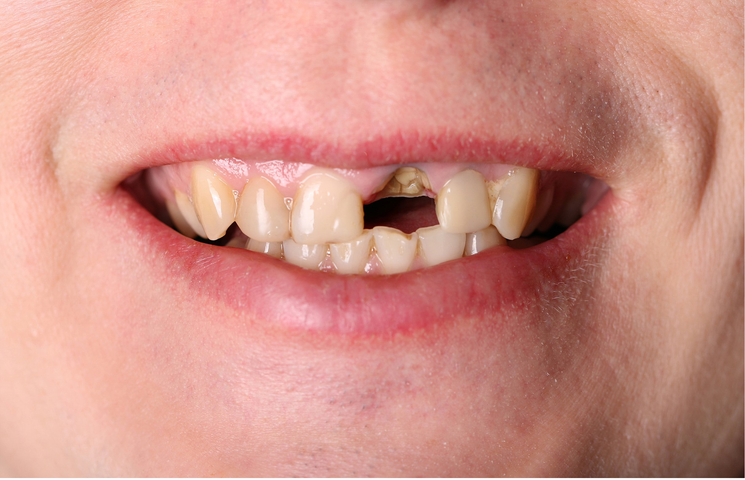 Single tooth Implants -Before