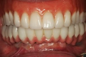 After All-on-6-Dental-Implants