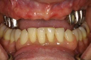 Before All-on-6-Dental-Implants