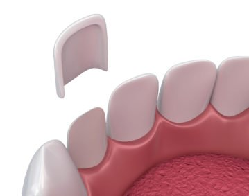 Dental Crowns & Veneers - Dental Surgery Services - We Create Smiles