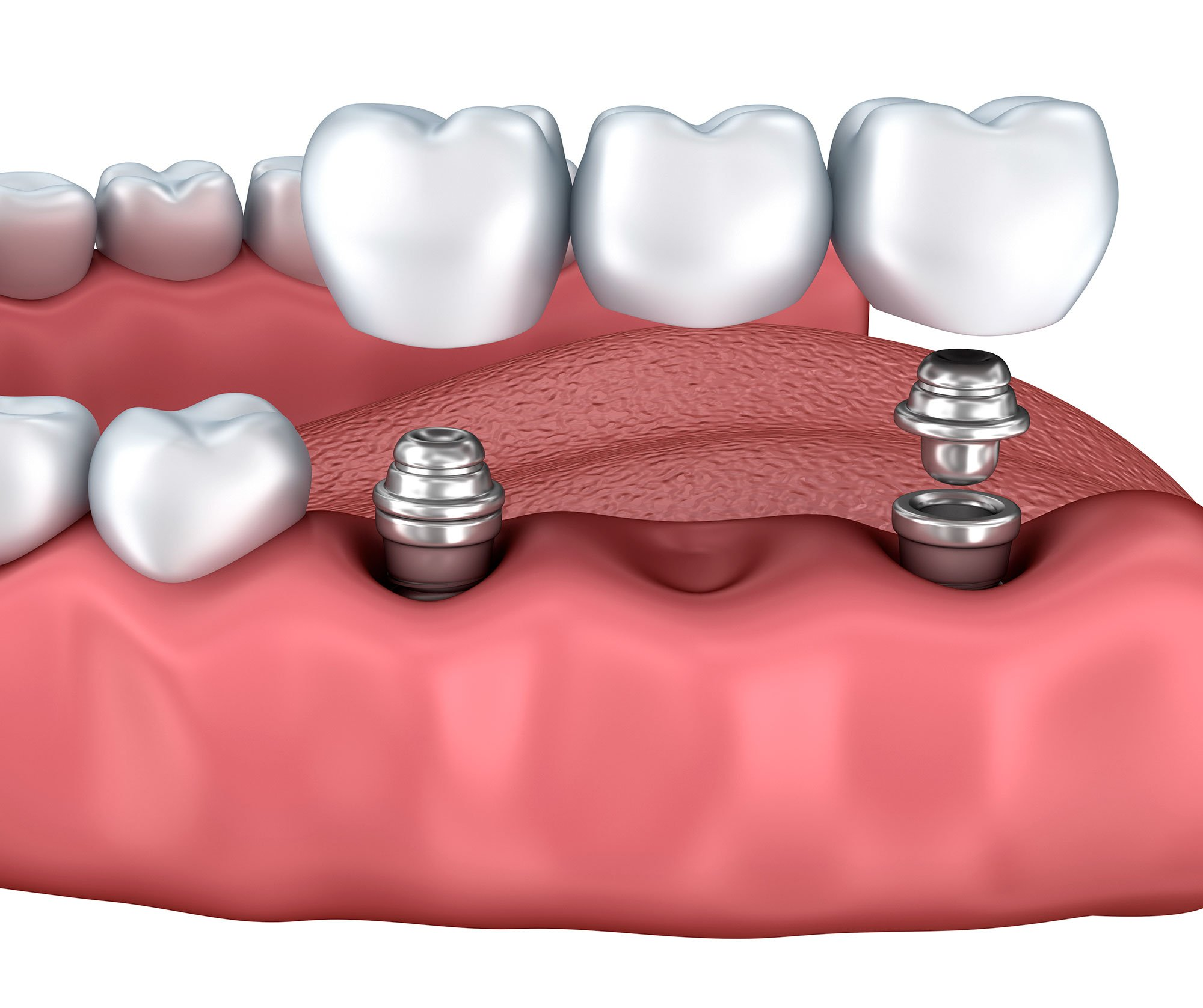 Multi Tooth Implants - Dental Surgery Services - We Create Smiles