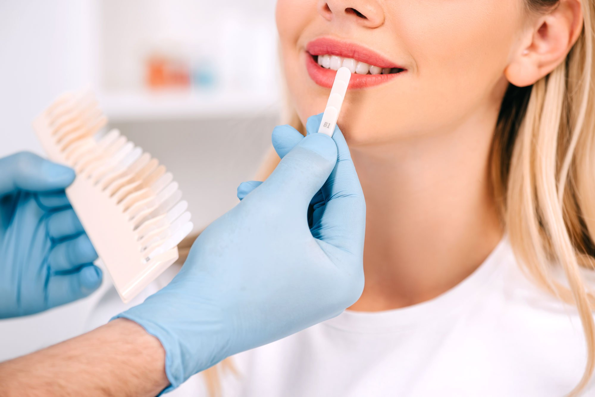 Teeth Whitening - Dental Surgery Services - We Create Smiles