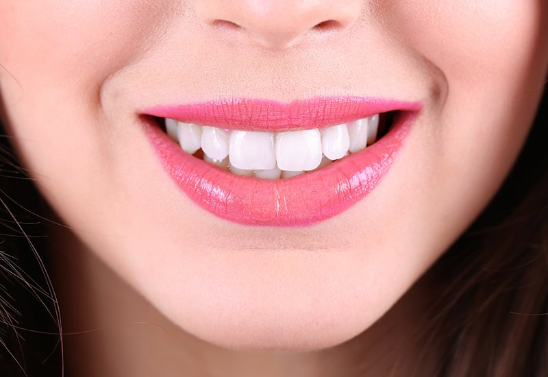 Smile After Teeth Whitening - Dental Surgery Services - We Create Smiles