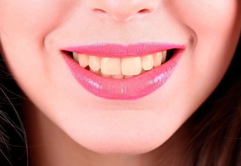 Smile Before Teeth Whitening - Dental Surgery Services - We Create Smiles