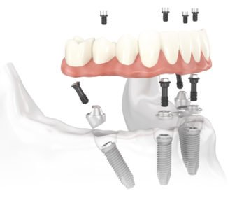 Loose Dentures Procedure - Dental Surgery Services - We Create Smiles