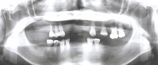 Patient presented with multiple teeth missing.